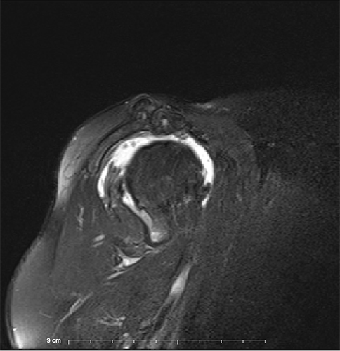 Image MRI